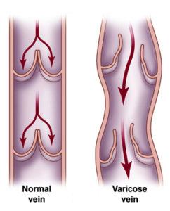 vein-chart